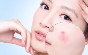 Hướng dẫn cách sử dụng tinh dầu tràm trị mụn làm đẹp da