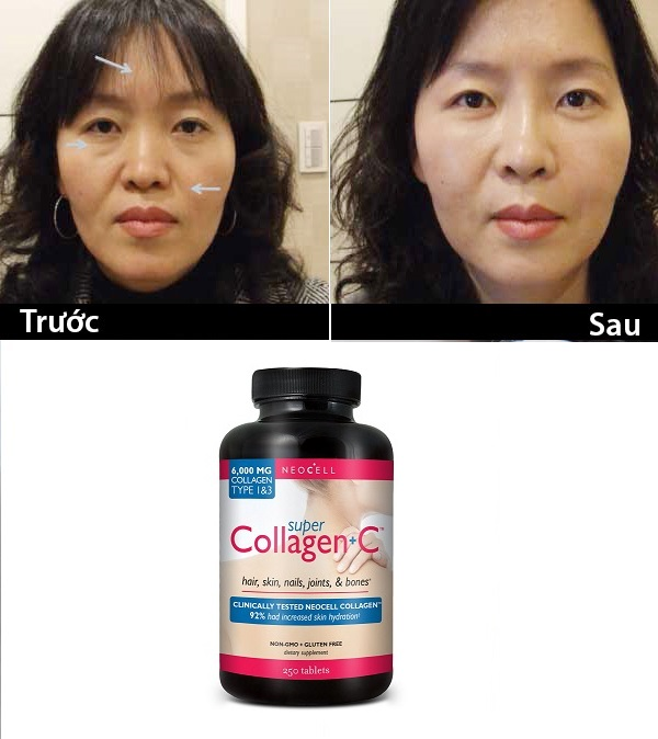 Neocell super Collagen C loại 250