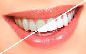 Bật mí cách làm trắng răng không cần hóa chất